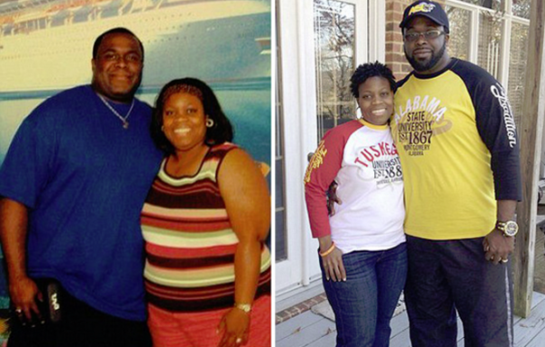 Tracy and PJ Spraggins_before and after surgery